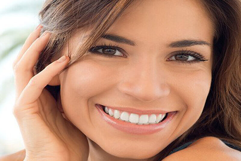 Picture of a smiling woman, happy with her dental veneers.