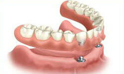 Illustration of an All-on-Two implant-supported denture being placed in the lower jaw by Premier Holistic Dental in London.