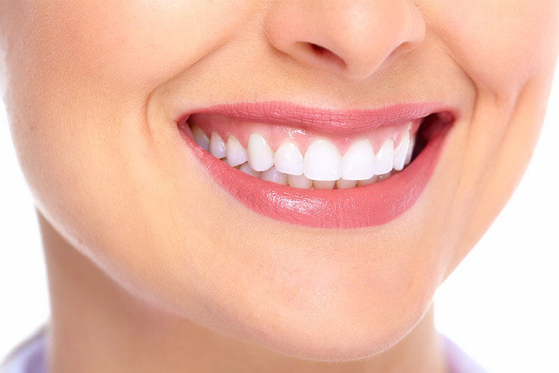 ).  Picture of a smiling woman, happy with her implant-supported dentures.