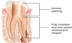 Illustration of a Holistic Root Canal being performed in the upper jaw by Premier Holistic Dental in London.