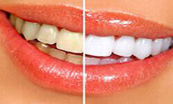 Picture of a smiling woman showing a Dental Whitening procedure by Premier Holistic Dental in London.